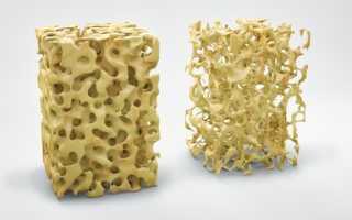 Сколько кальция в твороге? Содержание макроэлемента в 100 г продукта, с чем его едят, чтобы