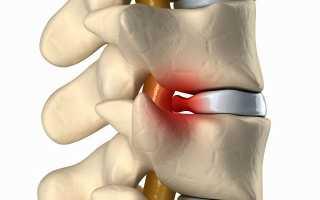 Медовый массаж спины: показания и противопоказания, применение при остеохондрозе шейного отдела и грыже позвоночника